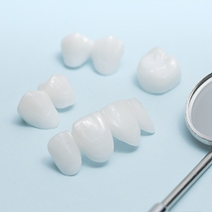 Metal free dental restorations